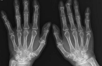 radiologiapacsrimini